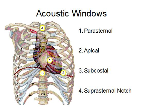 acoustic_windows