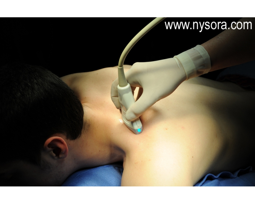 05_1_a_shoulder-suprascapular-artery-and-nerve_dsc_5085_copy