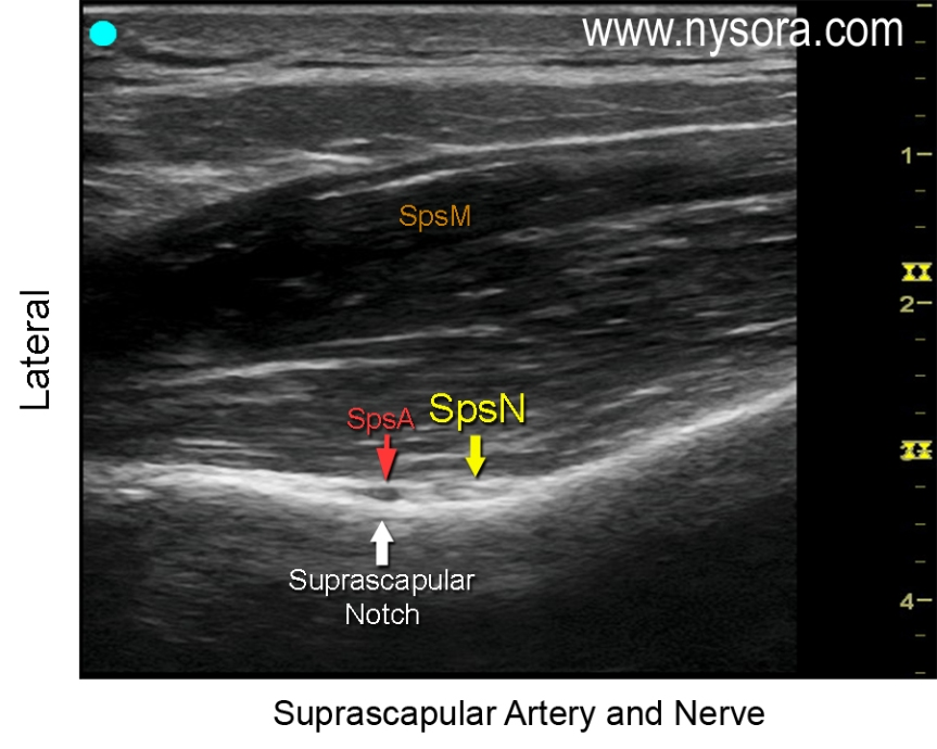 05_1_c_shoulder-suprascapular-artery-and-nerve_labels