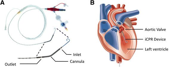 Ventricular Assist Devices: Impella