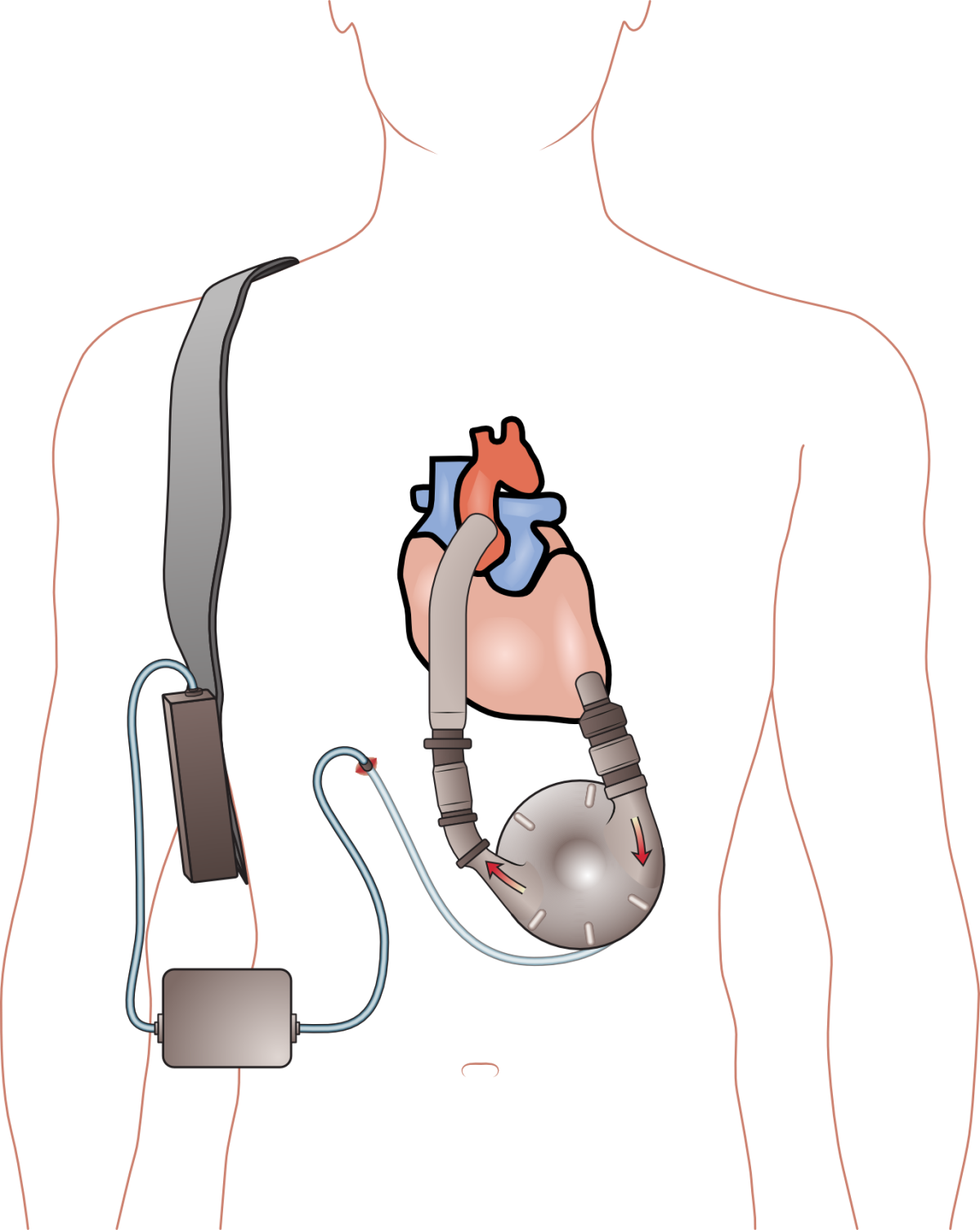 HeartWare vs. HeartMate LVAD