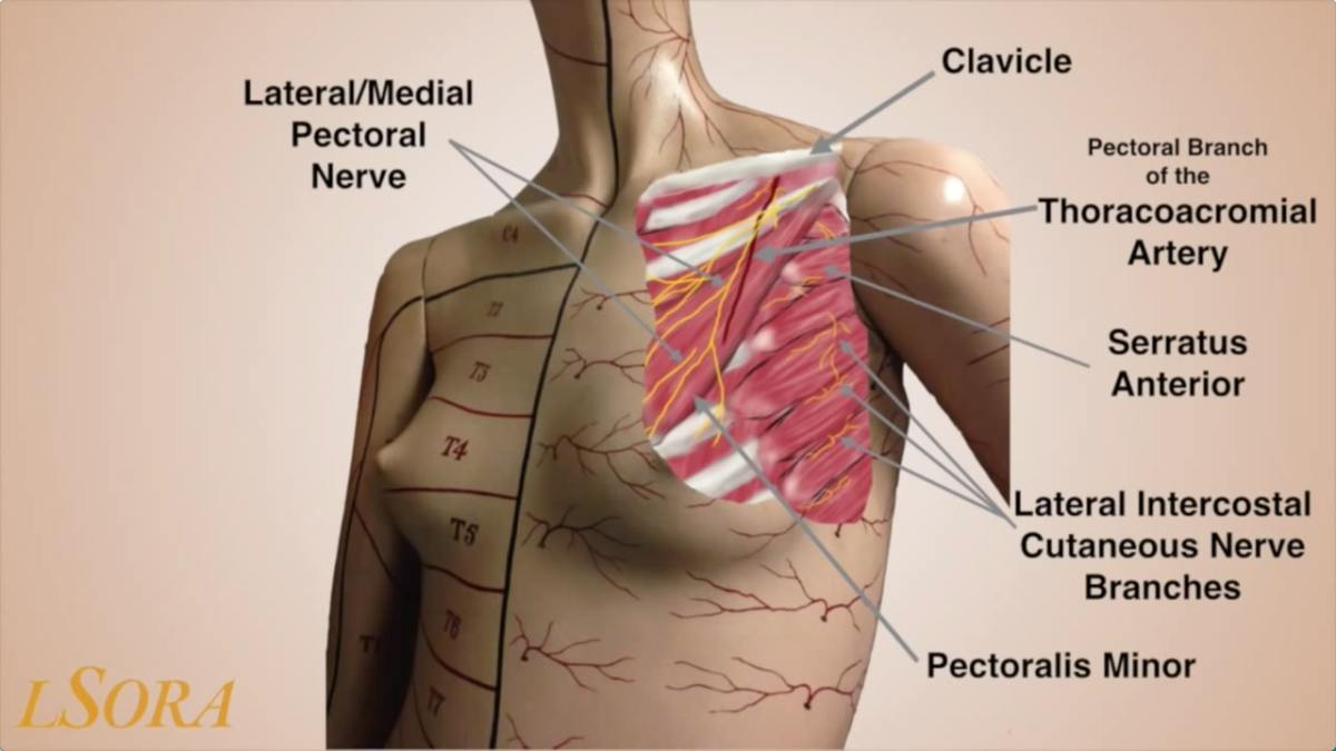 PEC 1 & 2 Blocks, Serratus Anterior Block