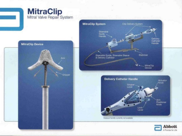 MitraClip and TEE for MR
