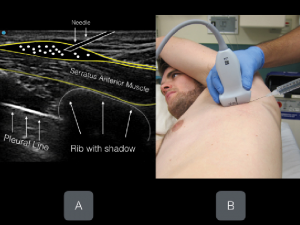Figure-17-Nagdev-2017-ACEP-Now-Ultrasound-Guided-Serratus-Anterior-Plane-Block-Can-Help-Avoid-Opioid-Use-for-Patients-with-Rib-Fractures-